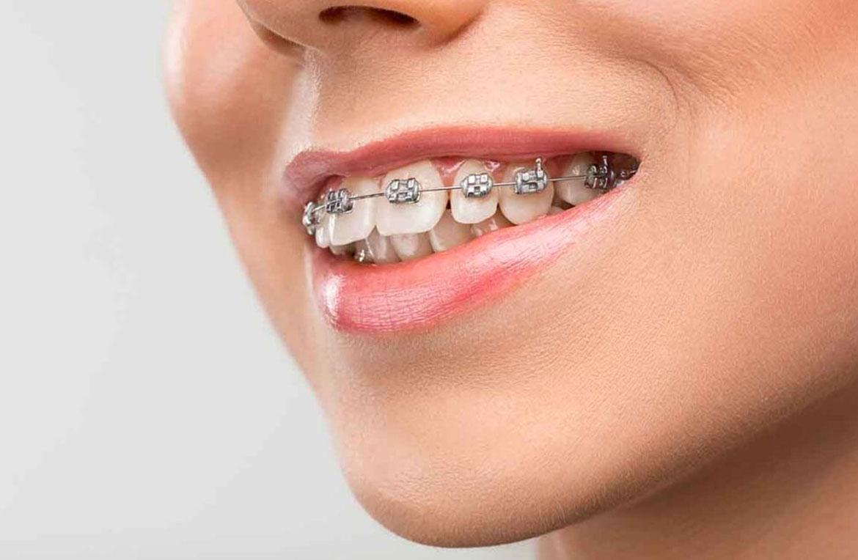Diş Teli Tedavisi Hakkında Bilmeniz Gerekenler