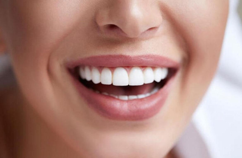 Diş Beyazlatma Hakkında Merak Edilenler!