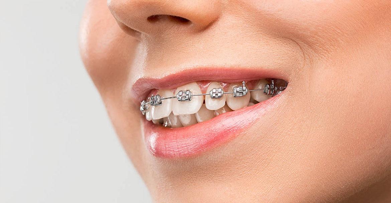 Ortodonti – Diş Teli